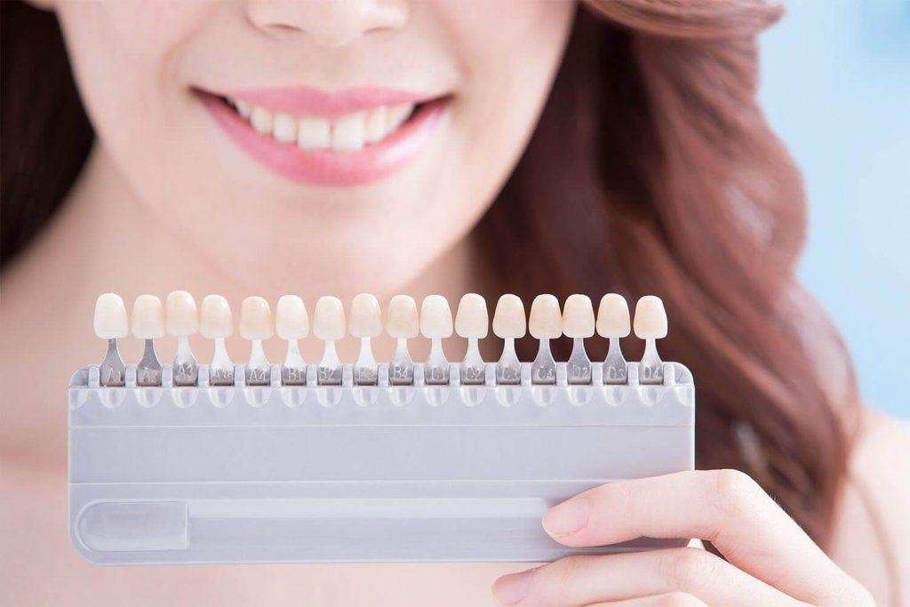 A woman holding a teeth shade guide
