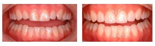 Before and after results of applying ultra-thin porcelain veneers
