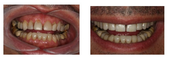 Before and after results applying ceramic crowns of veneers