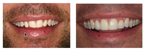 Before and after results of placing 4 porcelain veneers