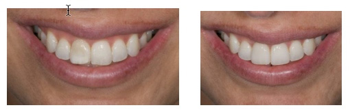 before and after results of dental cosmetic procedures